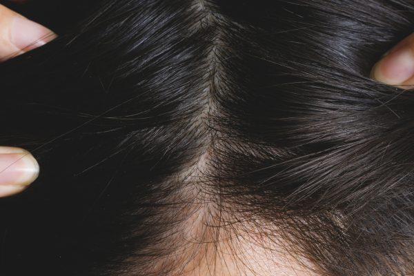 男性の髪の分け目