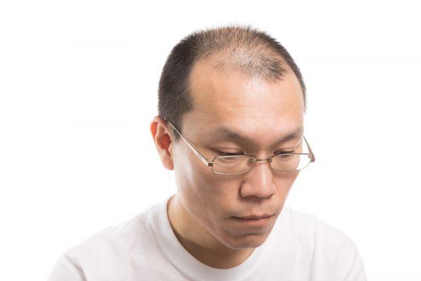 抜け毛はなぜ起きるの? 気になる抜け毛とは|おすすめの抜け毛対策方法を紹介!