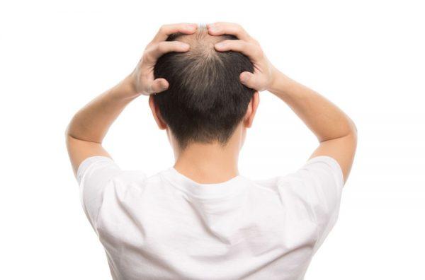 薄毛は対策できる? 薄毛になる原因とは? おすすめの対策方法を解説!