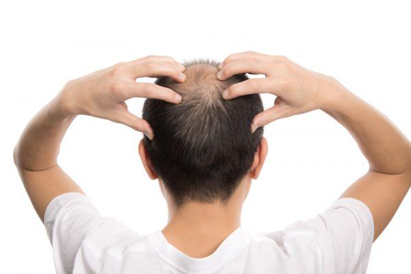 頭を抱える薄毛の男性