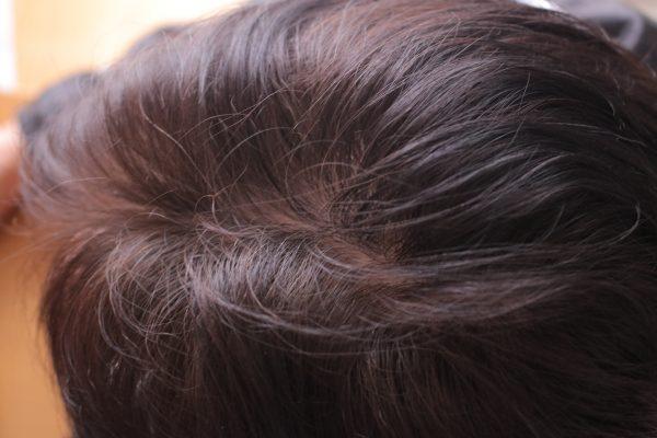 男性の頭頂部の画像