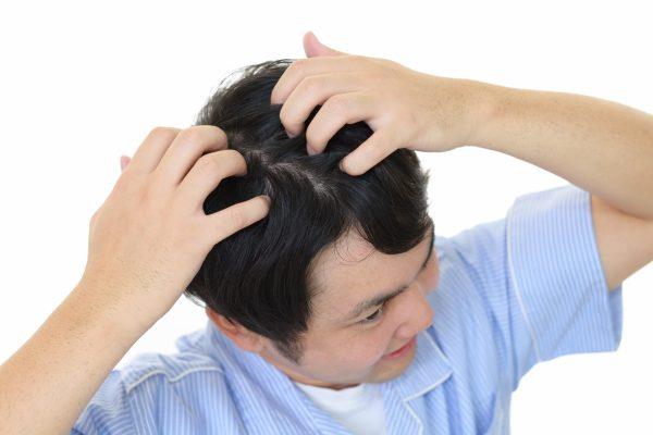 髪をかき分けて頭皮を気にする男性