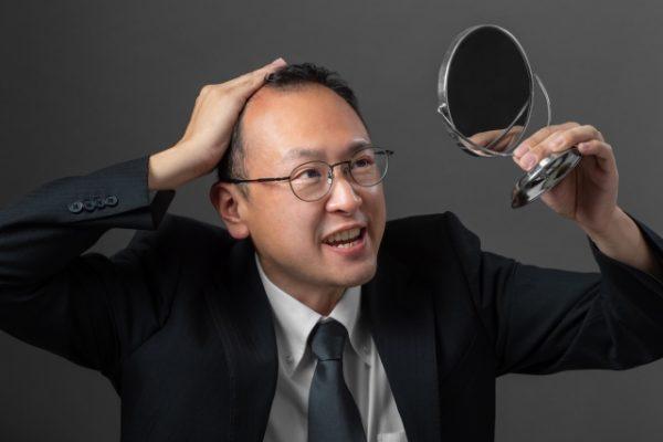 薄毛隠しにおすすめの4つの方法を解説! 今日から始められる薄毛対策とは?