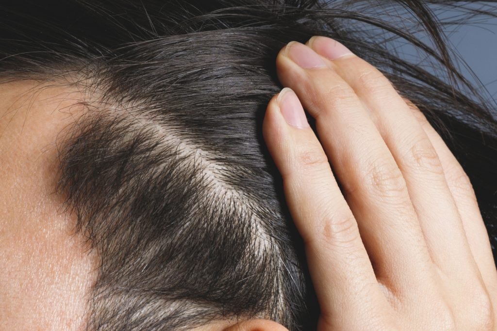 髪をかき上げ頭皮を見せる男性