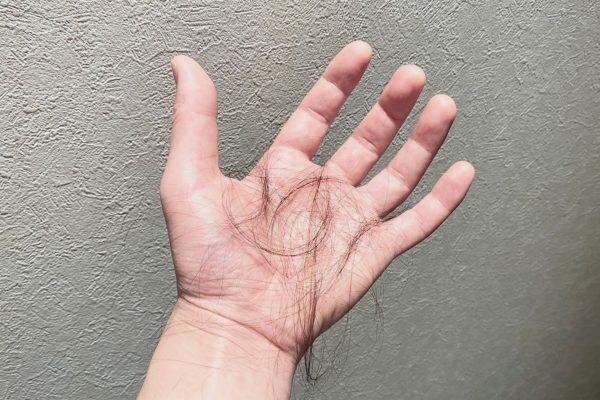 抜け毛の原因とは